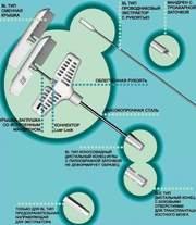Игла для костной трепан-биопсии, с конусовидным дистальным концом,  и пи