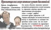 Пересадка волос. Трансплантация собственных волос в Украине